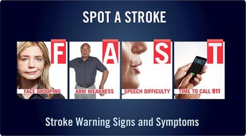 stroke fast
